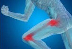 Απελευθέρωση από τους πόνους και τα προβλήματα στα γόνατα και τα ισχία 1