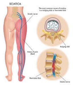 Αυτοθεραπεία από πρόβλημα στα ισχία, τα γόνατα και τη μέση ξεμπλοκάροντας τους αντίστοιχους μεσημβρινούς. 5