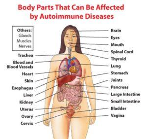 Απελευθερωθείτε από όλα τα αυτοάνοσα νοσήματα (σκλήρυνση κατά πλάκας, νόσο του Αλτσχάιμερ, Άσθμα, Πάρκινσον, Hashimoto, φλεγμονή στο έντερο, αρθρίτιδες, ψωρίαση, λεύκη, λύκος) 1