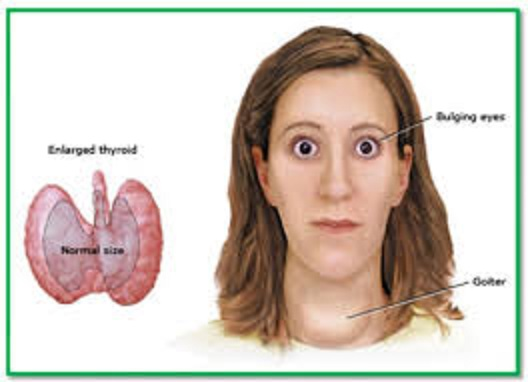 Αυτοθεραπεία από υπερθυρεοειδισμό και αρρυθμία. της Αγγελικής Πουλίμα Γλυνάτση 9