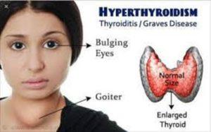 Αυτοθεραπεία από τα προβλήματα και τους όζους στο θυρεοειδή αδένα 4
