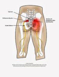 Αυτοθεραπεία από πρόβλημα στα ισχία, τα γόνατα και τη μέση ξεμπλοκάροντας τους αντίστοιχους μεσημβρινούς. 3