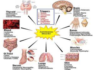 Απελευθερωθείτε από όλα τα αυτοάνοσα νοσήματα (σκλήρυνση κατά πλάκας, νόσο του Αλτσχάιμερ, Άσθμα, Πάρκινσον, Hashimoto, φλεγμονή στο έντερο, αρθρίτιδες, ψωρίαση, λεύκη, λύκος) 3