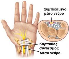 Αυτοθεραπεία από τενοντιτίδα, σύνδρομο καρπιαίου σωλήνα και όλα τα προβλήματα στα δάκτυλα 9