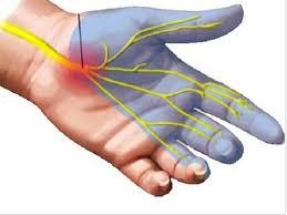 Αυτοθεραπεία από τενοντιτίδα, σύνδρομο καρπιαίου σωλήνα και όλα τα προβλήματα στα δάκτυλα 4