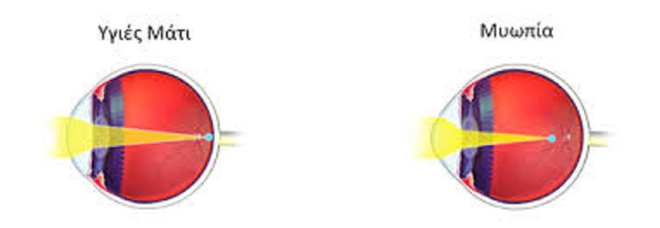 Μπορούμε να προλαβαίνουμε και να βελτιώνουμε προβλήματα στα μάτια όπως μυωπία,πίεση, καταράκτη, γλάυκωμα, την ωχρά κηλίδα, απελευθερώνοντας την ροή της ενέργειας, ξεμπλοκάροντας τους μεσημβρινούς που περικλείουν τα μάτια μας. 5