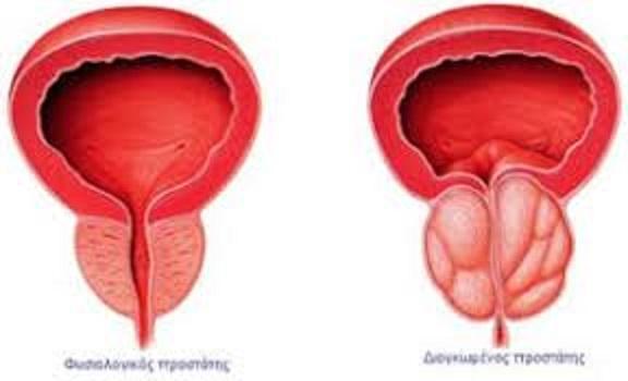 Vér a vizeletben egy férfi prostatitis Prostatis hogyan kell csökkenteni