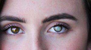 Μπορούμε να προλαβαίνουμε και να βελτιώνουμε προβλήματα στα μάτια όπως μυωπία,πίεση, καταράκτη, γλάυκωμα, την ωχρά κηλίδα, απελευθερώνοντας την ροή της ενέργειας, ξεμπλοκάροντας τους μεσημβρινούς που περικλείουν τα μάτια μας. 2