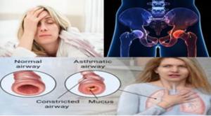 Αυτοθεραπεία από έλλειψη ενέργειας, ατονία, δυσκολία και έλλειψη αντοχής στο βάδισμα, άσθμα, προβλήματα στα ισχία αποκαθιστώντας την ροή της ενέργειας  της Παρθένας Γερουλίδου , ξεμπλοκάροντας τους μεσημβρινούς μας., 1