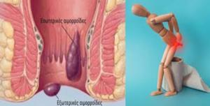 Αυτοθεραπεία από αιμορροΐδες ξεμπλοκάροντας τον μεσημβρινό του παχέος εντέρου 1