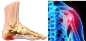 Αυτοθεραπεία από άκανθα πτέρνας και τενοντίτιδα, της Εύας Μαυρουδή ξεμπλοκάροντας τον μεσημβρινό των νεφρών και του παχέως εντέρου. 1