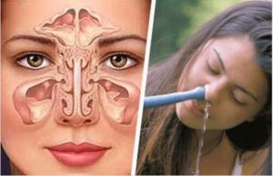 Αυτοθεραπεία από χρόνιο έντονο πονοκέφαλο,ιγμορίτιδα, αλλεργικό άσθμα, ασθματική βρογχίτιδα, έντονο στρες με αναλυτική εξήγηση βήμα βήμα πως γίνεται πρακτικά. 2