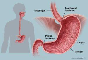 Απαλλαγή από διαταραχή στο στομάχι (γαστρίτιδα, έλκος), φουσκώματα, πρήξιμο στην κοιλιά, οισοφαγική παλινδρόμηση 1