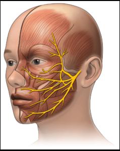 Μπορούμε να αυτοθεραπευτούμε από πάρεση στο προσωπικό νεύρο, ξεμπλοκάροντας τον μεσημβρινό της χολής και του στομάχου 1