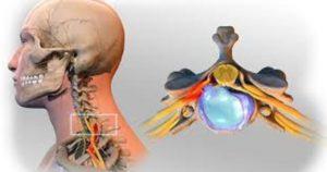 Απελευθέρωση από τον πονοκέφαλο τις ημικρανίες, αλλά και τον πόνο και  τα προβλήματα στον αυχένα 4