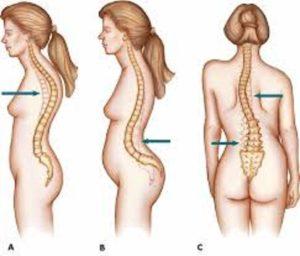 Απαλλαγείτε από τα προβλήματα στην σπονδυλική στη στήλη, οσφυαλγία, ισχιαλγία,κήλες και πόνους στη μέση, σκολίωση, καμπούρα, στένωση. 2
