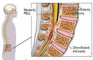 Απαλλαγείτε από τα προβλήματα στην σπονδυλική στη στήλη, οσφυαλγία, ισχιαλγία,κήλες και πόνους στη μέση, σκολίωση, καμπούρα, στένωση. 5
