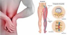 Απαλλαγείτε από τα προβλήματα στην σπονδυλική στη στήλη, οσφυαλγία, ισχιαλγία,κήλες και πόνους στη μέση, σκολίωση, καμπούρα, στένωση. 4