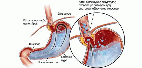 Πως απάλλασσόμαστε από απο όλα τα προβλήματα του στομάχου, γαστροοισοφαγική πάλινδρόμηση και αχαλασία οισοφάγου. 58