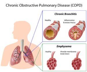 Αυτοθεραπεία από Χρόνια Αποφρακτική Πνευμονοπάθεια (ΧΑΠ), βρογχίτιδα, εμφύσημα ξεμπλοκάροντας τον μεσημβρινό του πνευμόνα. 5