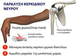 Αυτοθεραπεία από ιγμορίτιδα, τενοντίτιδα, σύνδρομο καρπιαίου σωλήνα, πόνους στα χέριακαι στα δάκτυλα. 3