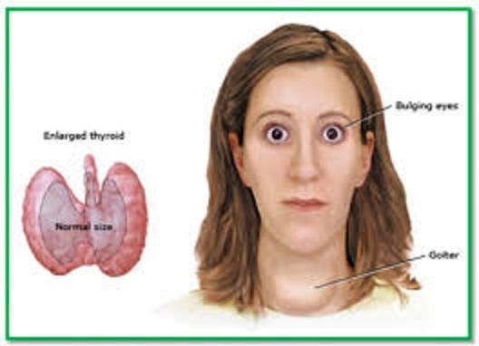 Αυτοθεραπεία από υπερθυρεοειδισμό και αρρυθμία. της Αγγελικής Πουλίμα Γλυνάτση 1