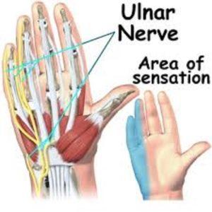 Αυτοθεραπεία από ιγμορίτιδα, τενοντίτιδα, σύνδρομο καρπιαίου σωλήνα, πόνους στα χέριακαι στα δάκτυλα. 5