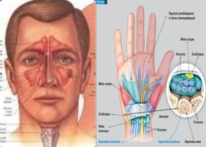 Αυτοθεραπεία από ιγμορίτιδα, τενοντίτιδα, σύνδρομο καρπιαίου σωλήνα, πόνους στα χέριακαι στα δάκτυλα. 1