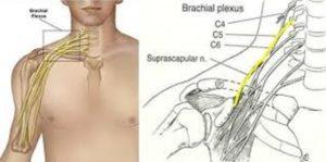 Aυτοθεραπεία από πάρεση των νεύρων των χεριών (ωλένιο, κερκιδικό, μέσο και υπερπλάτιο νεύρο), πόνο στα χέρια, τενοντίτιδα, σύνδρομο καρπιαίου σωλήνα. 4