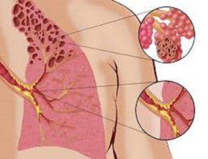 Αυτοθεραπεία από Χρόνια Αποφρακτική Πνευμονοπάθεια (ΧΑΠ), βρογχίτιδα, εμφύσημα ξεμπλοκάροντας τον μεσημβρινό του πνευμόνα. 2