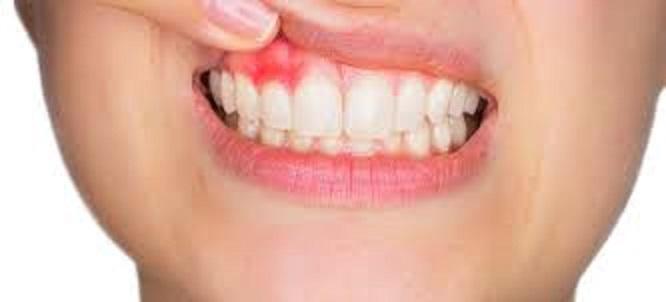Αυτοθεραπεία από πρήξιμο στα δόντια, ουλίτιδα, κύστες και περιοδοντίτιδα. 51