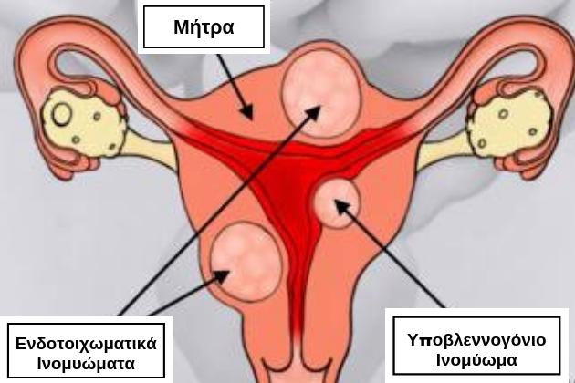 Αυτοθεραπεία από ινομυώματα και την αιμοραγία που προκαλούν, καθώς μετουσίωση συναισθηματικού βάρους σε χαρά ξεμπλοκάροντας τον μεσημβρινό  της σκπλήνας πάγκρεας και λεπτού εντέρου 21